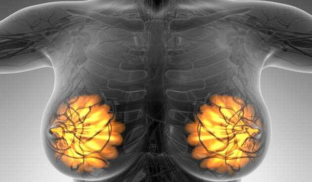 Imagen alusiva al cáncer de mamá