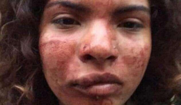 Nicol Valentina Jiménez, víctima de racismo en Portugal