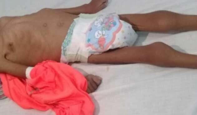 Niño indígena sufre desnutrición en Juradó, Chocó