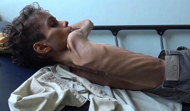 Niños hambre Yemen