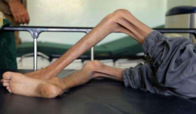 Niños desnutridos en Yemen