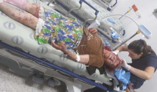 La adulta mayor sufrió graves heridas en el rostro y la cabeza.