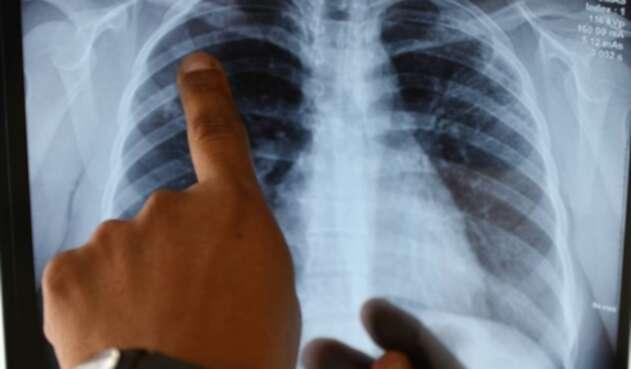 Los científicos han hecho grandes descubrimientos sobre lo que hace el coronavirus en los pulmones.