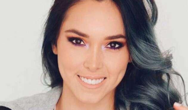 La youtuber plasmó en redes sociales el accidente que sufrió su dentadura