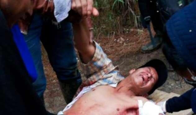 El indígena Breiner Yunda Camayo tras ser impactado en medio de la minga