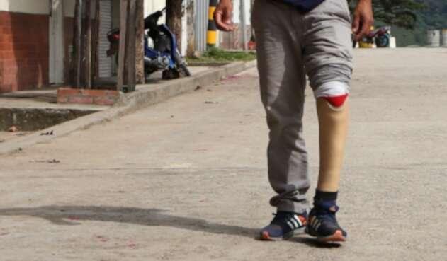 José Yamid Garzón, víctima de minas antipersonales.