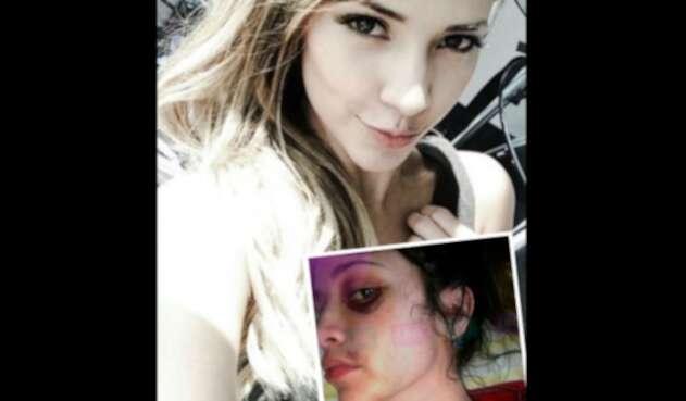 Zulma Rey fue víctima de agresión física