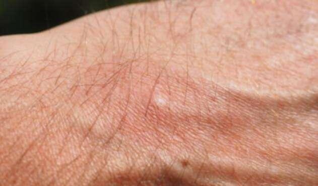 ¿Cómo saber si se es alérgico a un alimento?