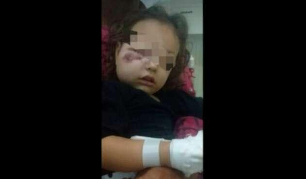 Fotos de la niña agredida han dejado constancia de la violencia con la que fue golpeada