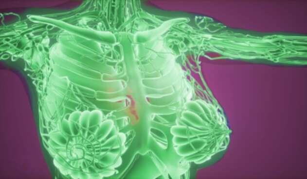 Tecnología detectaría cáncer de seno