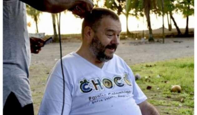 Carlos Alfonso Negret se rapó