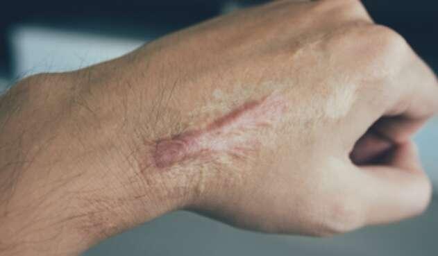 Impresora 3d puede crea tejido para cubrir Cicatriz en la piel