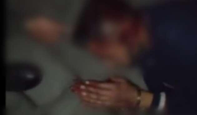 Hombre víctima de abuso policial den Bogotá