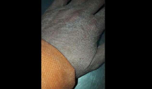 Mano de la médica Monica Paporello tras horas de trabajo