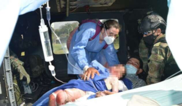 Niño quemado en Santander