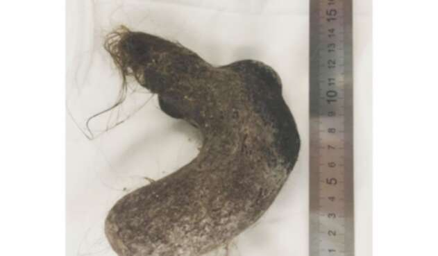 La bola de pelos hallada en estómago de una niña