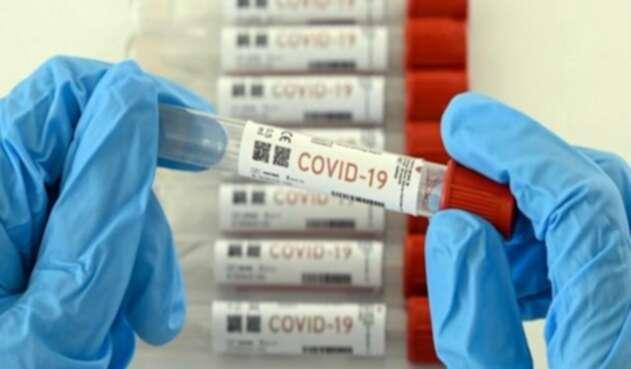 Pruebas Covid-19 imagen de referencia