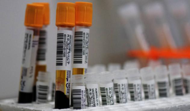 Dosis de vacunas de Janssen - Johnson & Johnson