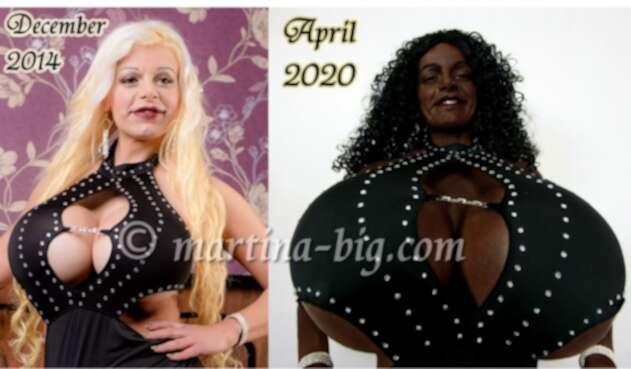 Martina Big, mujer que dice sentirse negra y cambió color de piel