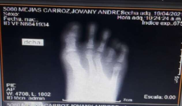 Niño de nacionalidad venezolana a punto de perder un dedo, por falta de atención médica en Cartagena