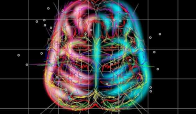CerebroColores1INGIMAGEREF1.jpg