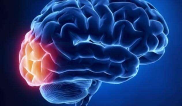 cerebroquiz1.jpg