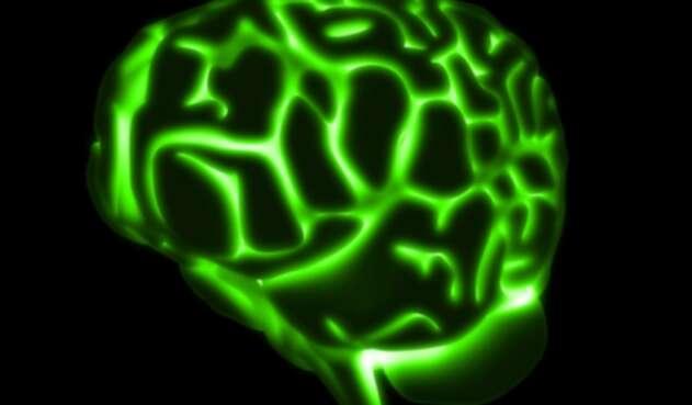 cerebroverde1ingimagereflafm1.jpg